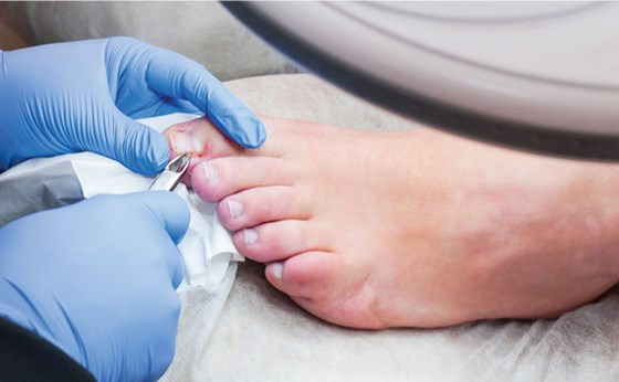 toenail cutting cardiff